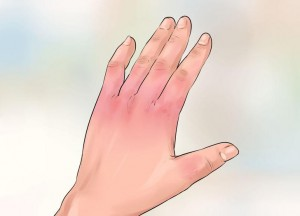 Determine the severity of your burn
